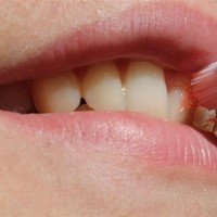 Zahnreinigung (2)