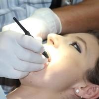 Zahnreinigung (3)