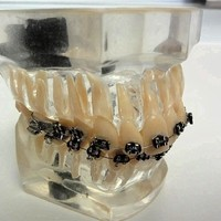 Zahnregulierung festsitzend