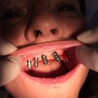 Implantologie (2)
