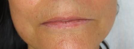 lehner lippe 002
